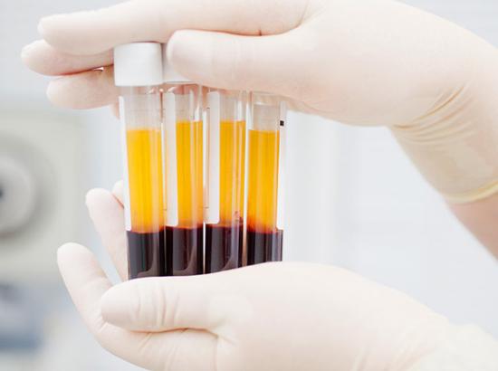 新冠肺炎康复者血浆内抗体可用于治疗  其原理是什么?